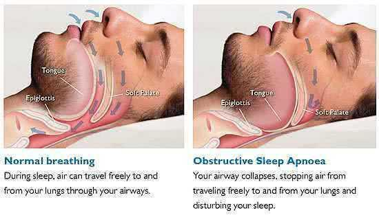 Апноэ сна, связанное со сном, нарушение дыхания, неуточненное