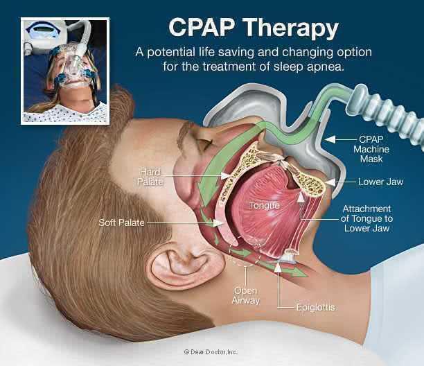 Основы CPAP-терапии