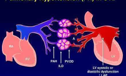 Идиопатическая альвеолярная гиповентиляция, не связанная с обструкцией дыхательных путей