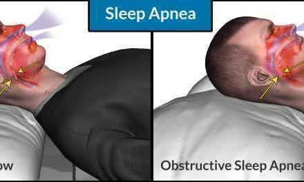 Рекомендации для начинающего пользователя CPAP